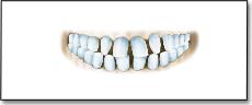 Разстояние между зъбите - треми, диастеми